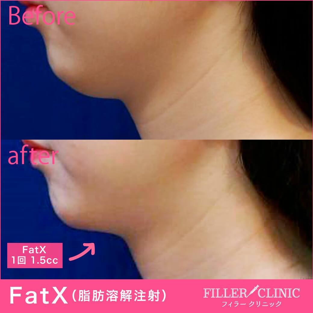 FatX注射:顎下