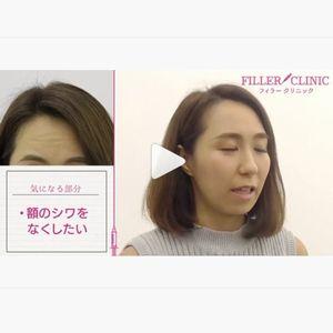 シワボツリヌストキシン症例動画