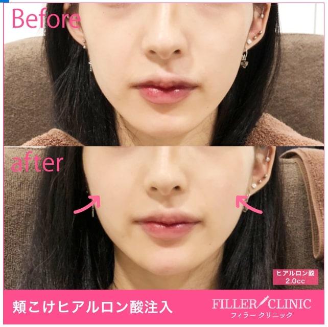 唇ヒアルロン酸注入症例写真