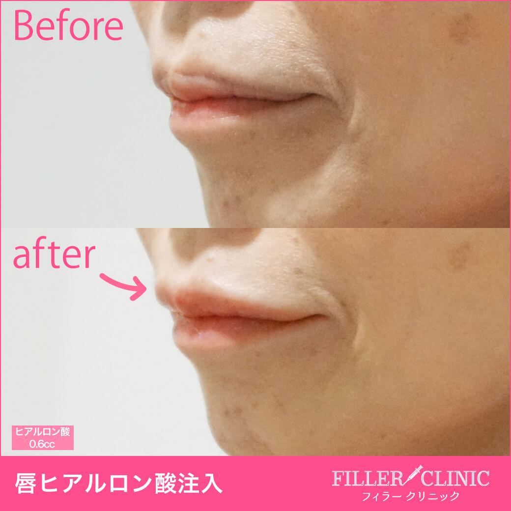 唇ヒアルロン酸症例写真