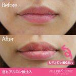 唇ヒアルロン酸注入の症例写真